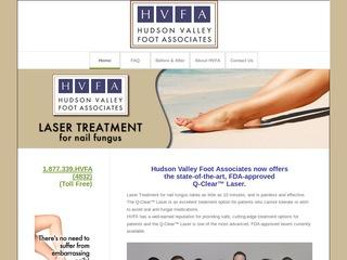 Pain-Free Foot Laser